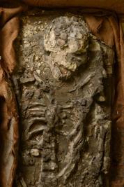 penn-skeleton-ur